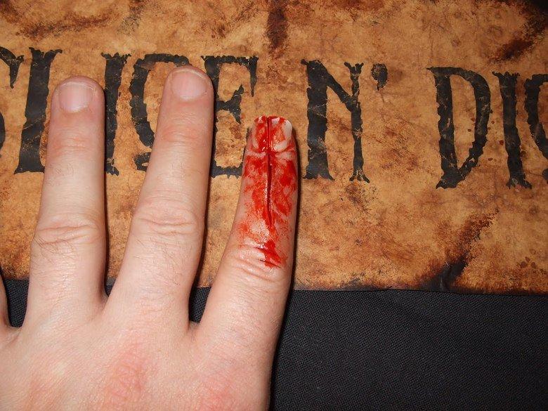 MORBID: Stubbing your finger..... .. mfw finger injuries MORBID: Stubbing your finger mfw injuries